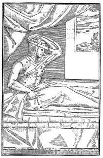 1597 engraving by Gaspare Tagliacozzi of an early technique for grafting tissue to surgically correct a nose defect