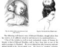 Edward Mordrake, Anomalies and Curiosities of Medicine, 1901