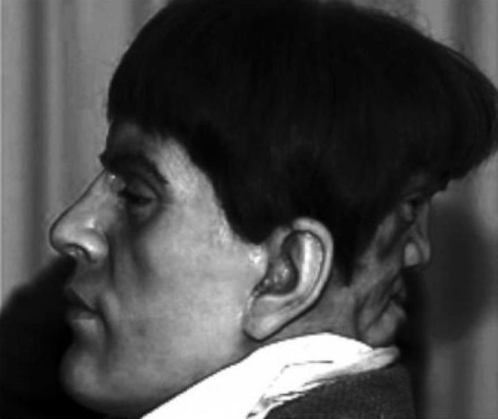 Two Faced Man Claimed to Be Edward Mordake